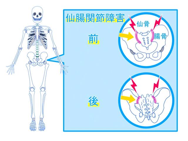 仙腸関節の傾き図